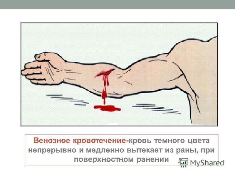 Венозное кровотечение-кровь темного цвета непрерывно и медленно вытекает из раны, при поверхностном ранении