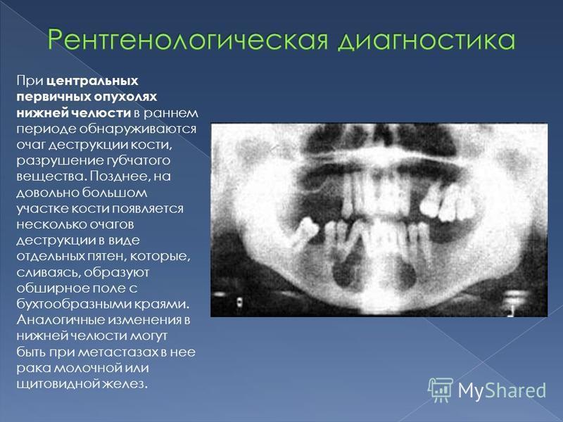 При центральных первичных опухолях нижней челюсти в раннем периоде обнаруживаются очаг деструкции кости, разрушение губчатого вещества. Позднее, на довольно большом участке кости появляется несколько очагов деструкции в виде отдельных пятен, которые,