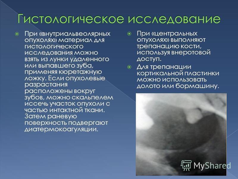 При «внутри альвеолярных опухолях» материал для гистологического исследования можно взять из лунки удаленного или выпавшего зуба, применяя кюретажную ложку. Если опухолевые разрастания расположены вокруг зубов, можно скальпелем иссечь участок опухоли