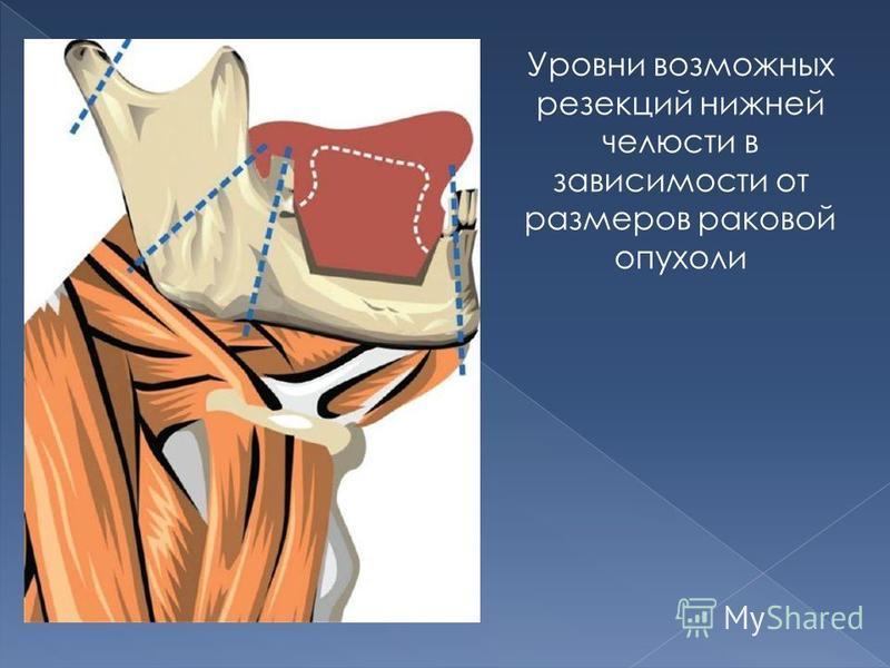Уровни возможных резекций нижней челюсти в зависимости от размеров раковой опухоли