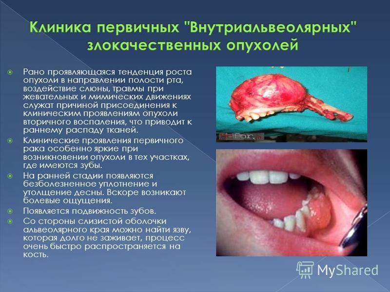 Рано проявляющаяся тенденция роста опухоли в направлении полости рта, воздействие слюны, травмы при жевательных и мимических движениях служат причиной присоединения к клиническим проявлениям опухоли вторичного воспаления, что приводит к раннему распа