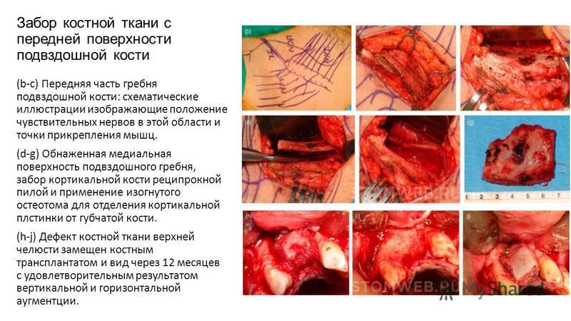 Забор костной ткани с передней поверхности подвздошной кости (b-с) Передняя часть гребня подвздошной кости: схематические иллюстрации изображающие положение чувствительных нервов в этой области и точки прикрепления мышц. (d-g) Обнаженная медиальная п