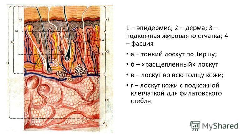 1 – эпидермис; 2 – дерма; 3 – подкожная жировая клетчатка; 4 – фасция а – тонкий лоскут по Тиршу; б – «расщепленный» лоскут в – лоскут во всю толщу кожи; г – лоскут кожи с подкожной клетчаткой для филатовского стебля;