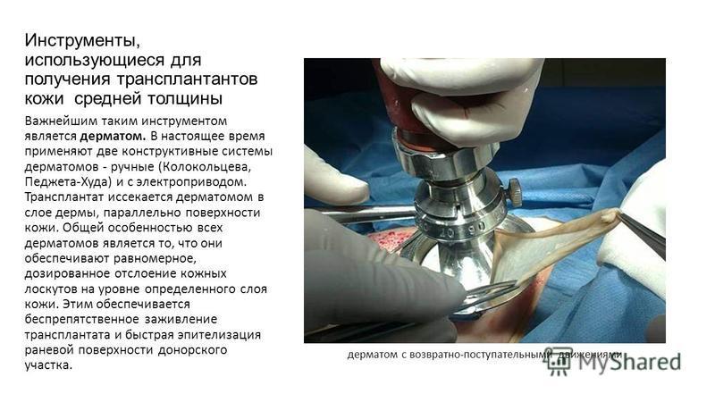 Инструменты, использующиеся для получения трансплантатов кожи средней толщины Важнейшим таким инструментом является дерматом. В настоящее время применяют две конструктивные системы дерматомов - ручные (Колокольцева, Педжета-Худа) и с электроприводом.