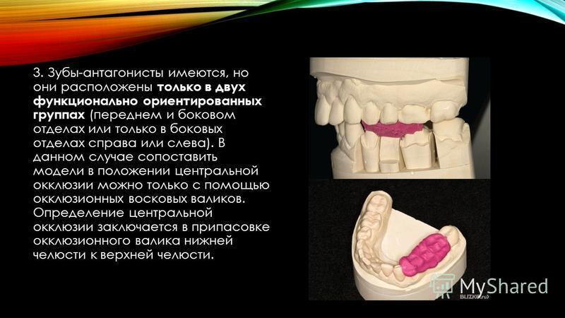 3. Зубы-антагонисты имеются, но они расположены только в двух функционально ориентированных группах (переднем и боковом отделах или только в боковых отделах справа или слева). В данном случае сопоставить модели в положении центральной окклюзии можно