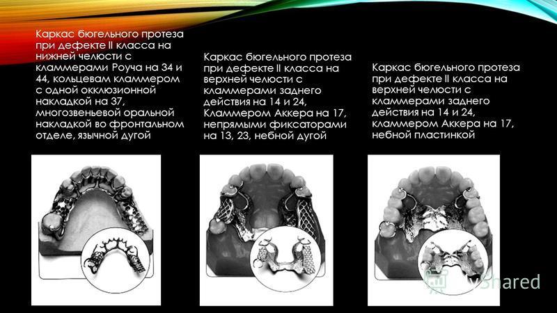 Каркас бюгельного протеза при дефекте II класса на нижней челюсти с кламмерами Роуча на 34 и 44, кольцевам кламмером с одной окклюзионной накладкой на 37, многозвеньевой оральной накладкой во фронтальном отделе, язычной дугой Каркас бюгельного протез