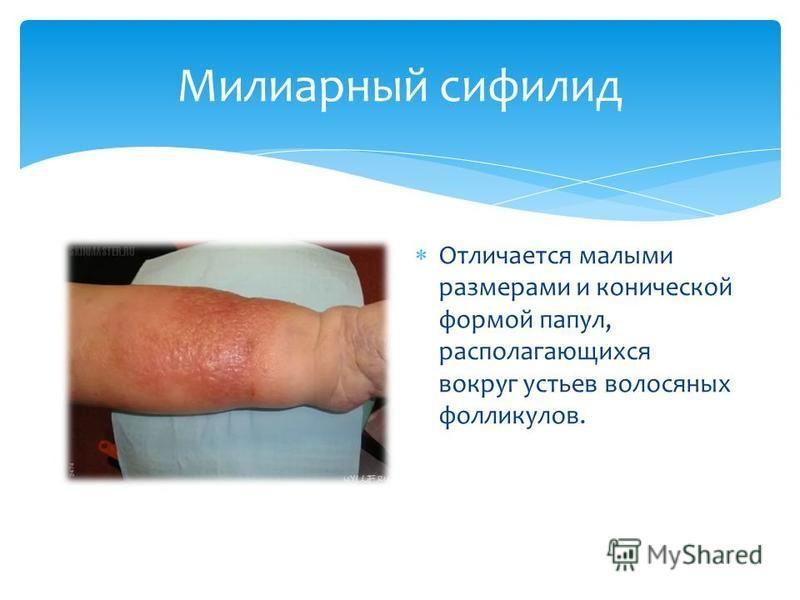 Милиарный сифилид Отличается малыми размерами и конической формой папул, располагающихся вокруг устьев волосяных фолликулов.