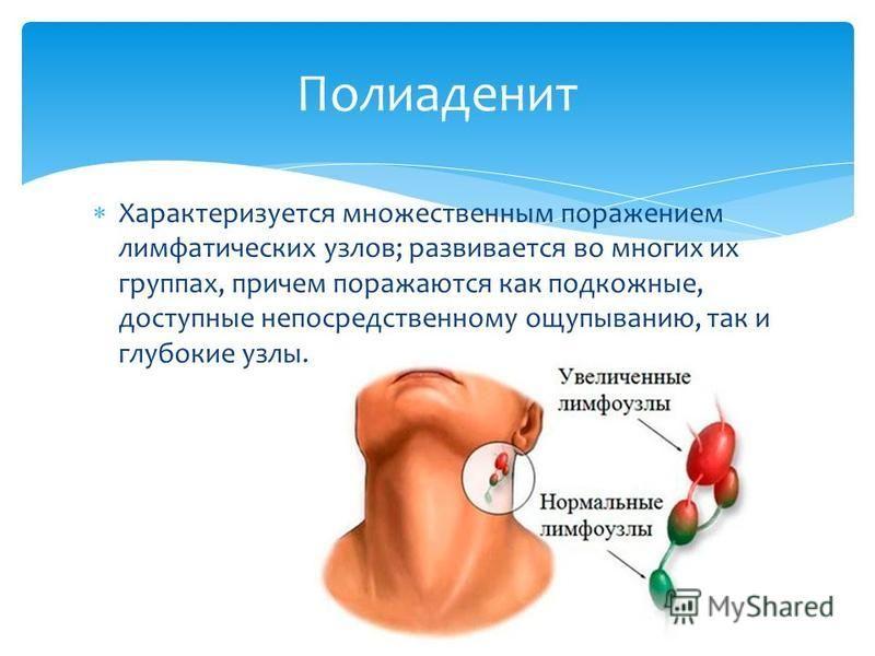 Характеризуется множественным поражением лимфатических узлов; развивается во многих их группах, причем поражаются как подкожные, доступные непосредственному ощупыванию, так и глубокие узлы. Полиаденит