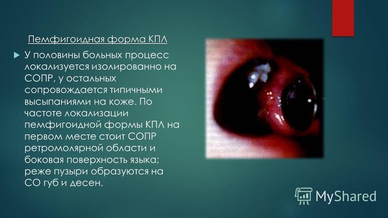 Пемфигоидная форма КПЛ У половины больных процесс локализуется изолированно на СОПР, у остальных сопровождается типичными высыпаниями на коже. По частоте локализации пемфигоидной формы КПЛ на первом месте стоит СОПР ретромолярной области и боковая по