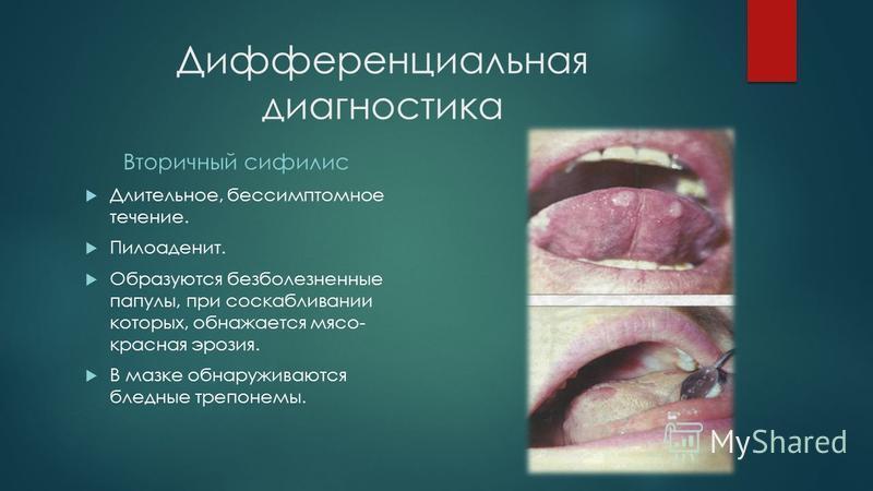 Дифференциальная диагностика Вторичный сифилис Длительное, бессимптомное течение. Пилоаденит. Образуются безболезненные папулы, при соскабливании которых, обнажается мясо- красная эрозия. В мазке обнаруживаются бледные трепонемы.