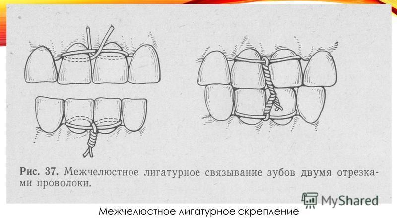Межчелюстное лигатурное скрепление