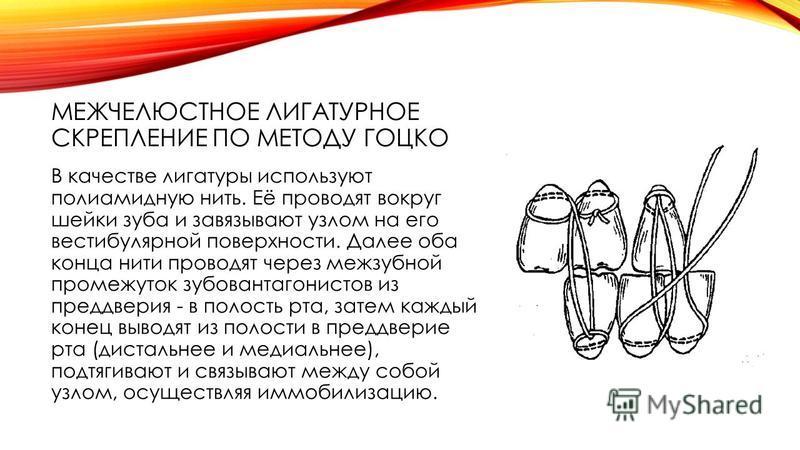 МЕЖЧЕЛЮСТНОЕ ЛИГАТУРНОЕ СКРЕПЛЕНИЕ ПО МЕТОДУ ГОЦКО В качестве лигатуры используют полиамидную нить. Её проводят вокруг шейки зуба и завязывают узлом на его вестибулярной поверхности. Далее оба конца нити проводят через межзубной промежуток зубов анта