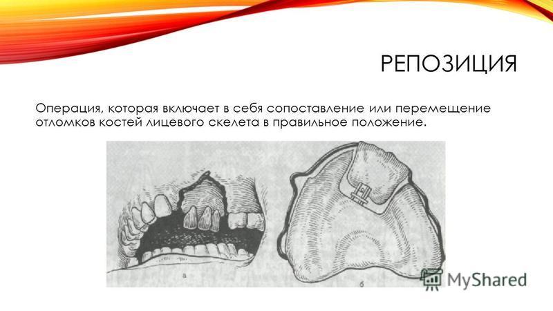 РЕПОЗИЦИЯ Операция, которая включает в себя сопоставление или перемещение отломков костей лицевого скелета в правильное положение.