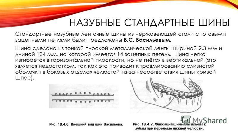 НАЗУБНЫЕ СТАНДАРТНЫЕ ШИНЫ Стандартные назубные ленточные шины из нержавеющей стали с готовыми зацепными петлями были предложены B.C. Васильевым. Шина сделана из тонкой плоской металлической ленты шириной 2,3 мм и длиной 134 мм, на которой имеется 14