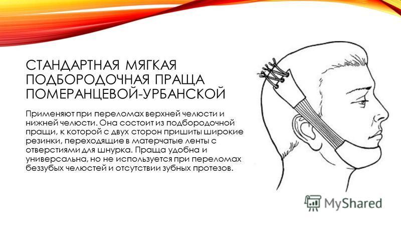 СТАНДАРТНАЯ МЯГКАЯ ПОДБОРОДОЧНАЯ ПРАЩА ПОМЕРАНЦЕВОЙ-УРБАНСКОЙ Применяют при переломах верхней челюсти и нижней челюсти. Она состоит из подбородочной пращи, к которой с двух сторон пришиты широкие резинки, переходящие в матерчатые ленты с отверстиями