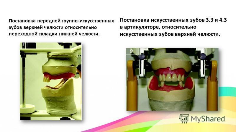 Постановка передней группы искусственных зубов верхней челюсти относительно переходной складки нижней челюсти. Постановка искусственных зубов 3.3 и 4.3 в артикуляторе, относительно искусственных зубов верхней челюсти.