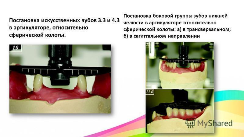 Постановка искусственных зубов 3.3 и 4.3 в артикуляторе, относительно сферической колоты. Постановка боковой группы зубов нижней челюсти в артикуляторе относительно сферической колоты: а) в трансверзальном; б) в сагиттальном направлении