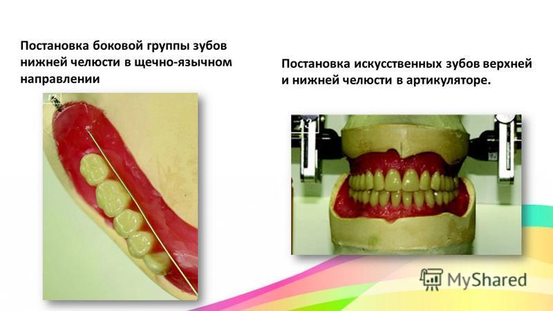 Постановка боковой группы зубов нижней челюсти в щечно-язычном направлении Постановка искусственных зубов верхней и нижней челюсти в артикуляторе.