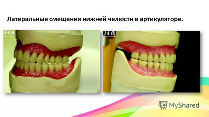 Латеральные смещения нижней челюсти в артикуляторе.