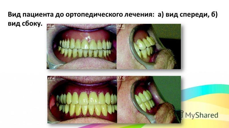 Вид пациента до ортопедического лечения: а) вид спереди, б) вид сбоку.