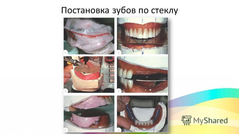 Постановка зубов по стеклу