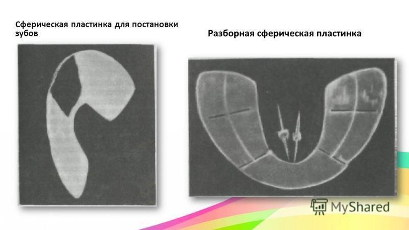Сферическая пластинка для постановки зубов Разборная сферическая пластинка