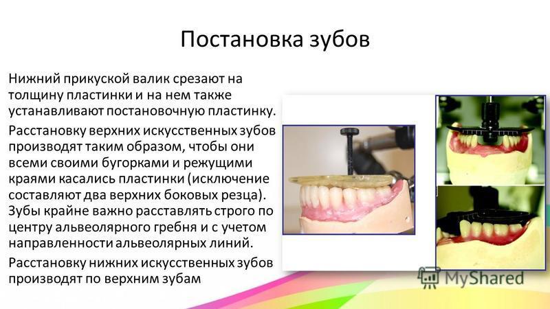 Постановка зубов Нижний прикуской валик срезают на толщину пластинки и на нем также устанавливают постановочную пластинку. Расстановку верхних искусственных зубов производят таким образом, чтобы они всеми своими бугорками и режущими краями касались п