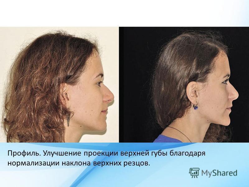 Профиль. Улучшение проекции верхней губы благодаря нормализации наклона верхних резцов.