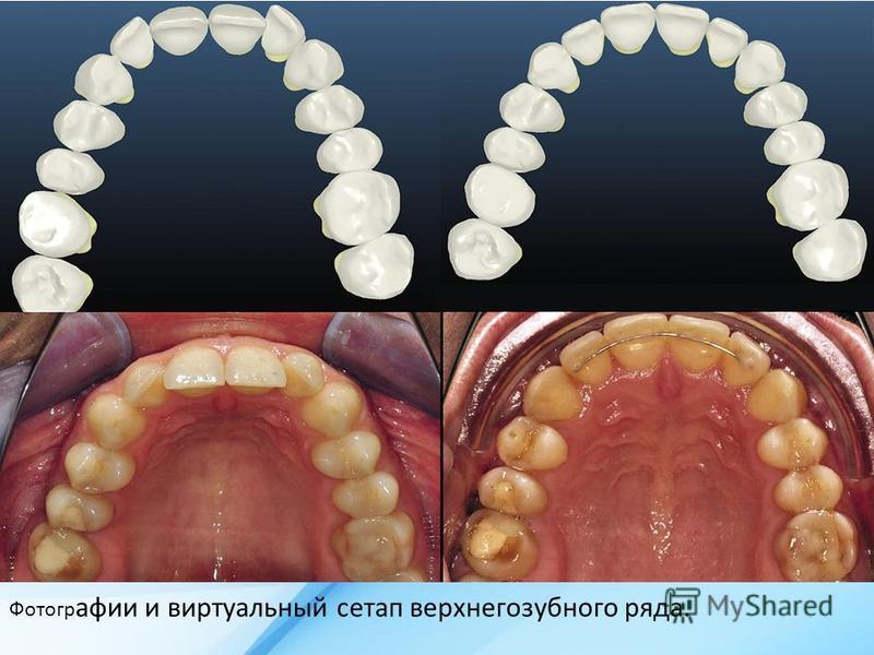 Фотогр афии и виртуальный сетап верхнего зубного ряда.