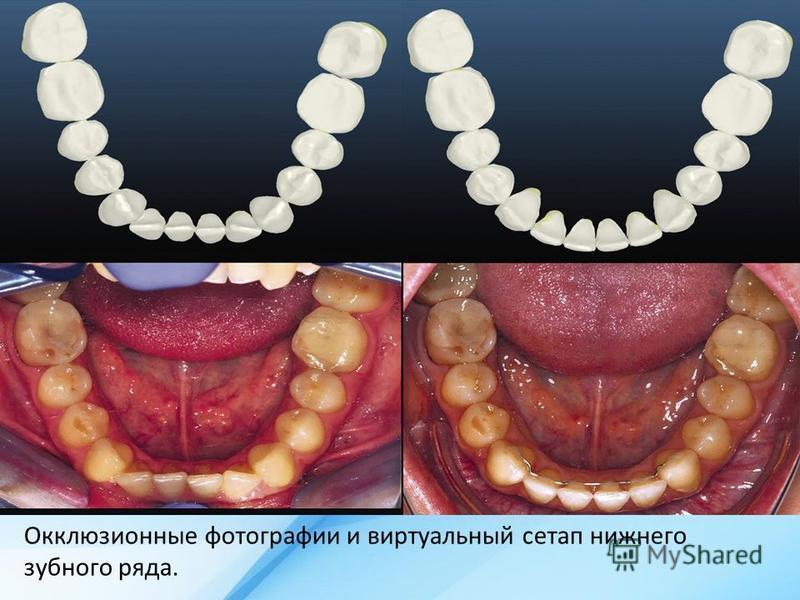 Окклюзионные фотографии и виртуальный сетап нижнего зубного ряда.