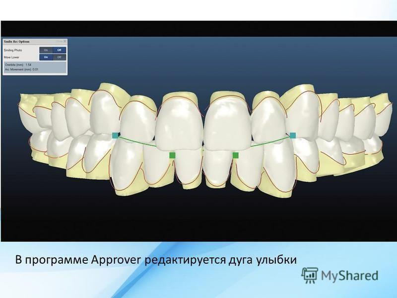 В программе Approver редактируется дуга улыбки