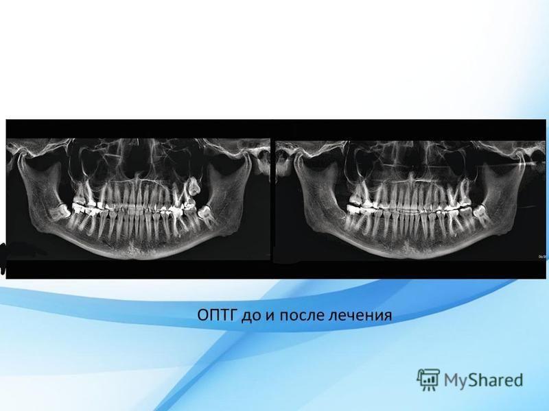 ОПТГ до и после лечения