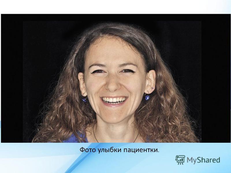 Фото улыбки пациентки.