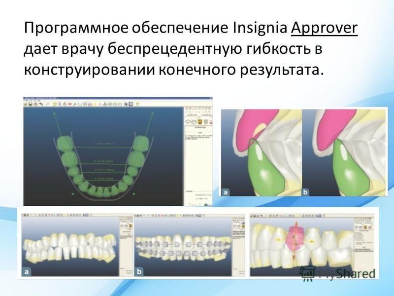 Программное обеспечение Insignia Approver дает врачу беспрецедентную гибкость в конструировании конечного результата.