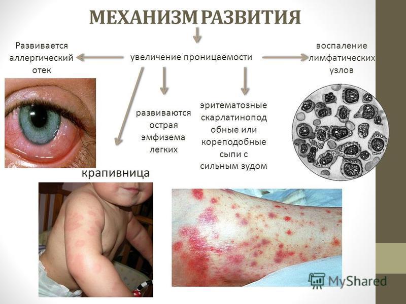 МЕХАНИЗМ РАЗВИТИЯ увеличение проницаемости Развивается аллергический отек крапивница развиваются острая эмфизема легких эритематозные скарлатин о подобные или кореподобные сыпи с сильным зудом воспаление лимфатических узлов