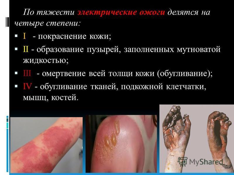 По тяжести электрические ожоги делятся на четыре степени: I - покраснение кожи; II - образование пузырей, заполненных мутноватой жидкостью; III - омертвение всей толщи кожи (обугливание); IV - обугливание тканей, подкожной клетчатки, мышц, костей.