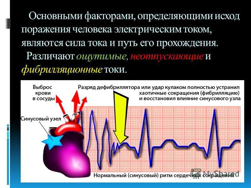 Основными факторами, определяющими исход поражения человека электрическим током, являются сила тока и путь его прохождения. Различают ощутимые, неотпускающие и фибрилляционные токи.