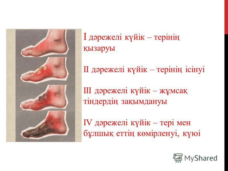 I дәрежелі күйік – терінің қызаруы II дәрежелі күйік – терінің ісінуі III дәрежелі күйік – жұмсақ тіндердің зақымдануы IV дәрежелі күйік – тері мен бұлшық еттің көмірленуі, күюі