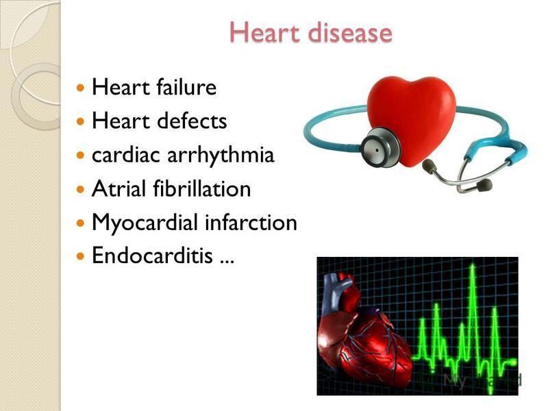 Heart disease Heart failure Heart defects cardiac arrhythmia Atrial fibrillation Myocardial infarction Endocarditis...