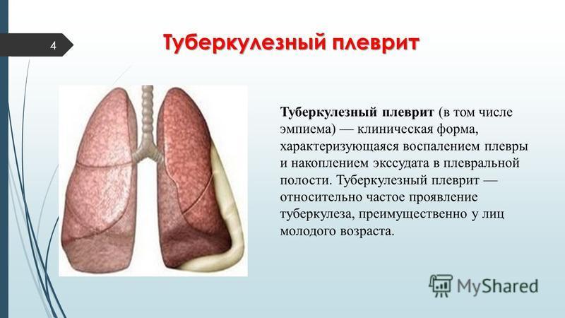 4 Туберкулезный плеврит Туберкулезный плеврит (в том числе эмпиема) клиническая форма, характеризующаяся воспалением плевры и накоплением экссудата в плевральной полости. Туберкулезный плеврит относительно частое проявление туберкулеза, преимуществен