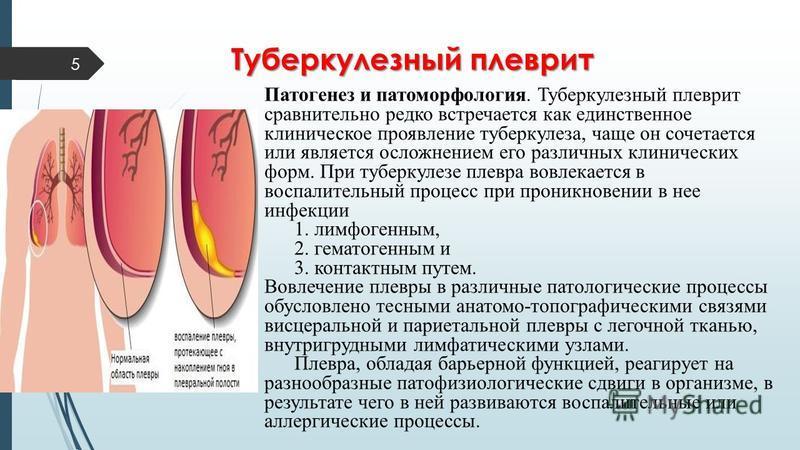 5 Патогенез и патоморфология. Туберкулезный плеврит сравнительно редко встречается как единственное клиническое проявление туберкулеза, чаще он сочетается или является осложнением его различных клинических форм. При туберкулезе плевра вовлекается в в