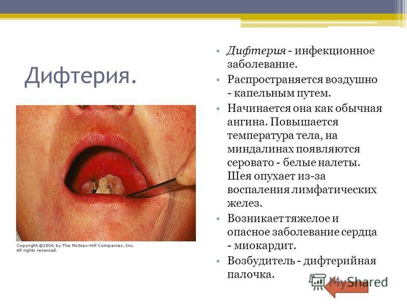 Дифтерия. Дифтерия - инфекционное заболевание. Распространяется воздушно - капельным путем. Начинается она как обычная ангина. Повышается температура тела, на миндалинах появляются серовато - белые налеты. Шея опухает из-за воспаления лимфатических ж