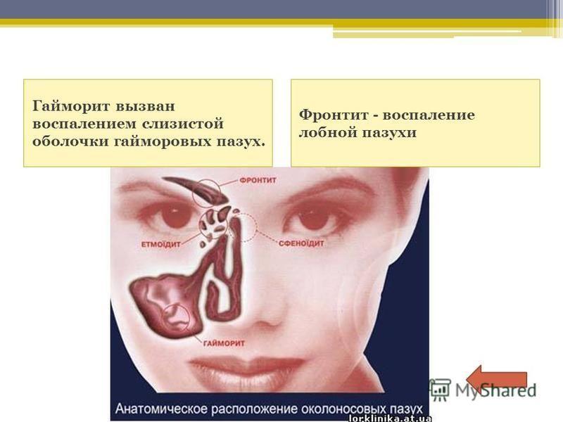 Гайморит вызван воспалением слизистой оболочки гайморовых пазух. Фронтит - воспаление лобной пазухи