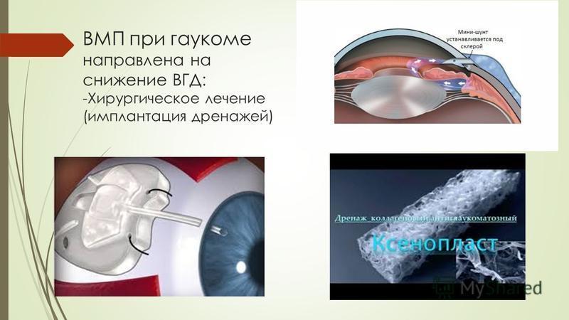 ВМП при глаукоме направлена на снижение ВГД: -Хирургическое лечение (имплантация дренажей)
