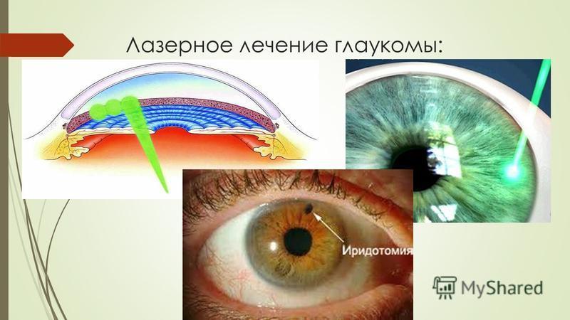 Лазерное лечение глаукомы: