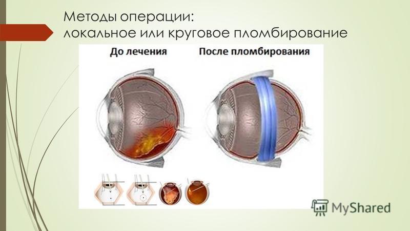 Методы операции: локальное или круговое пломбирование