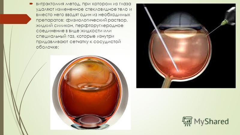 витрэктомия метод, при котором из глаза удаляют измененное стекловидное тело и вместо него вводят один из необходимых препаратов: физиологический раствор, жидкий силикон, перфторуглеродное соединение в виде жидкости или специальный газ, которые изнут
