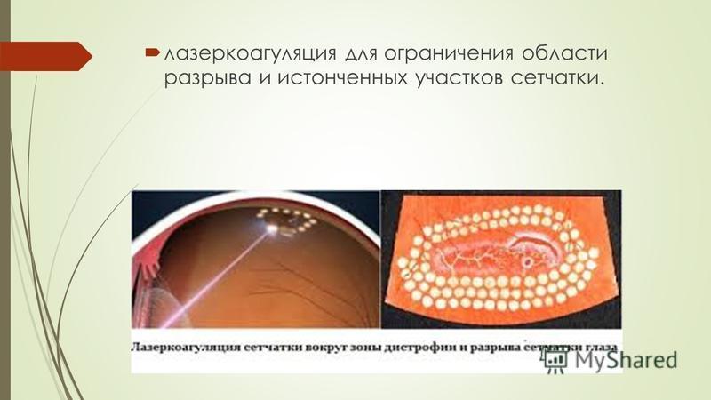 лазеркоагуляция для ограничения области разрыва и истонченных участков сетчатки.