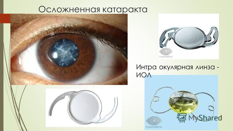 Осложненная катаракта Интра окулярная линза - ИОЛ