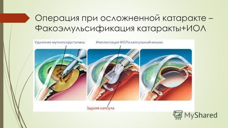 Операция при осложненной катаракте – Факоэмульсификация катаракты+ИОЛ